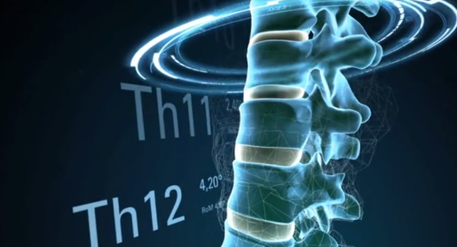 Spontech Interactive Spine by Design and Systems